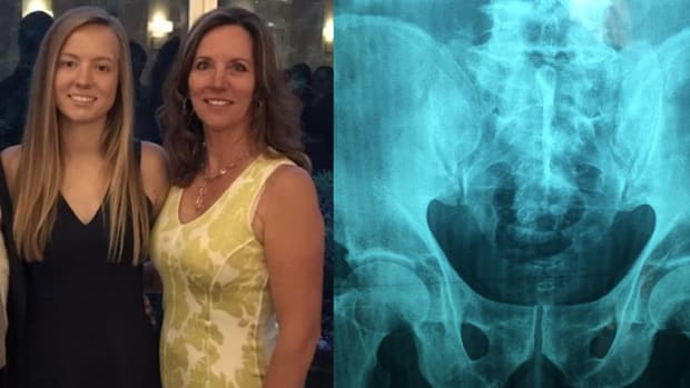 Sydney allen, x-ray reveals, piercing xray, racy piercings mom and daughter