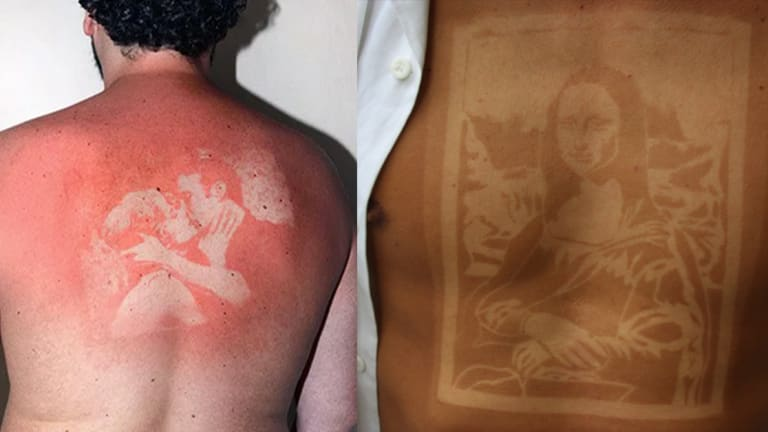 Sunburn Tattoos are the Latest Tanning Trend to Hit Social Media