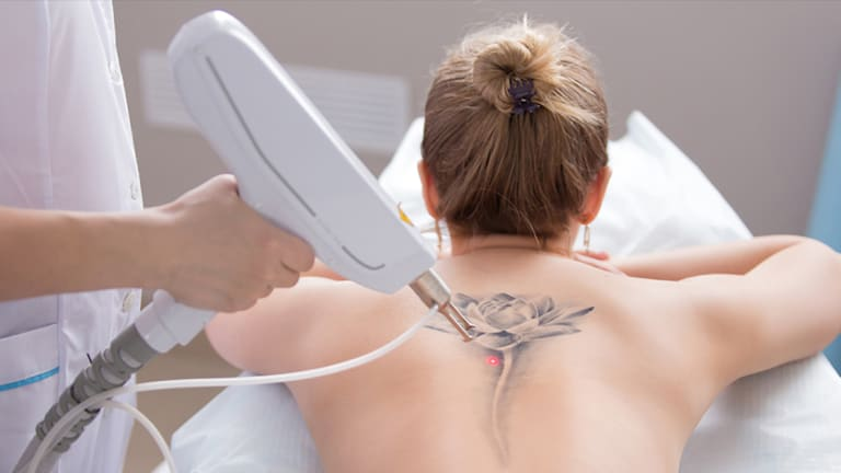 5 Things You Didn't Know About Laser Tattoo Removal