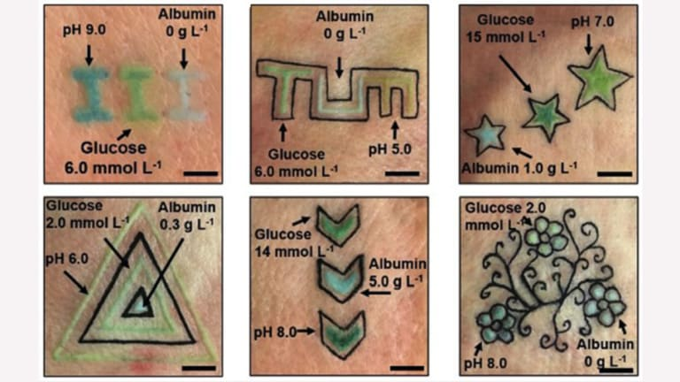 These Color Changing Tattoos Can Help Collectors with Diabetes