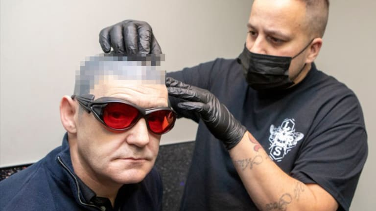Why This Cancer Survivor is Removing His Head Tattoo