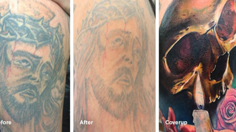 Laser Tattoo Removal. Read This Before Going Under the Laser!