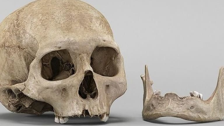 Bones From Over 500 Humans Found in Backyard