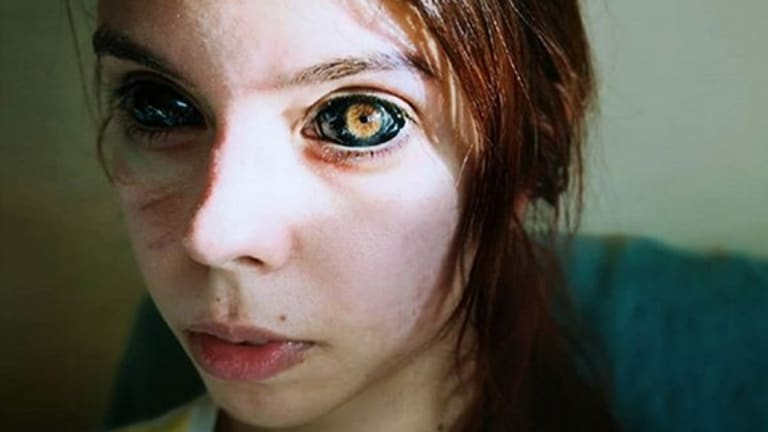 Model Goes Blind From Eyeball Tattoos Gone Wrong