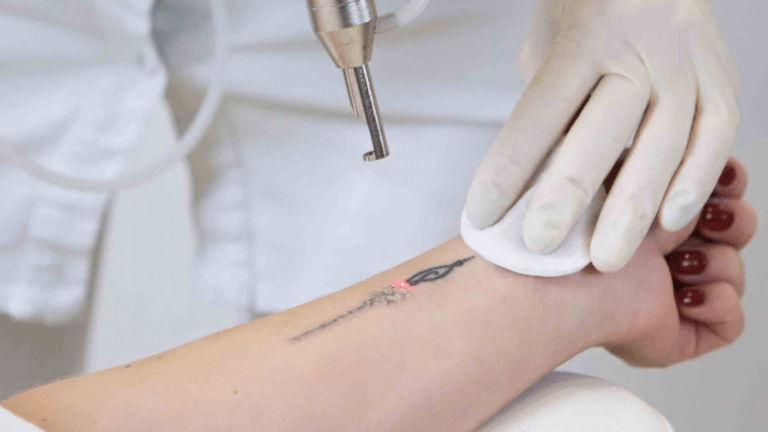 Robots Are Here to Take Your Tattoo Away