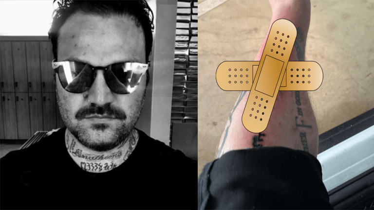 Bam Margera Hospitalized After New Tattoo Becomes Infected