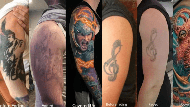 A Little Laser Removal Goes a Long Way