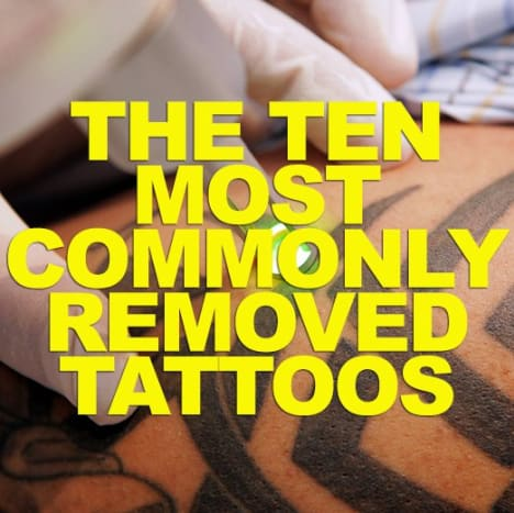 CLICK HERE to check out the 10 most commonly removed tattoos!