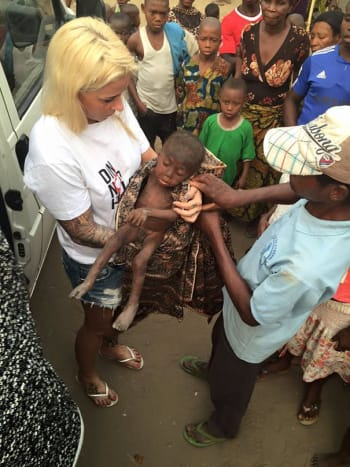 Photo via ACAEDFApparently the local community believed the orphaned 2 year-old boy was practicing witchcraft and was therefore ostracized by the community and refused to give him food, clothing or shelter.
