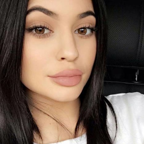 In 2015 the youngest Kar-Jenner, Kylie, admitted to using temporary lip fillers on an episode of Keeping Up With the Kardashians.