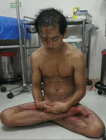 This week, a 30-year-old Thai man committed an act of sadomasochism after watching pornography.