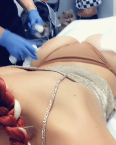 Farrah Abraham has recently debuted a newly enhanced booty and she also shared herself getting injections to her social media.