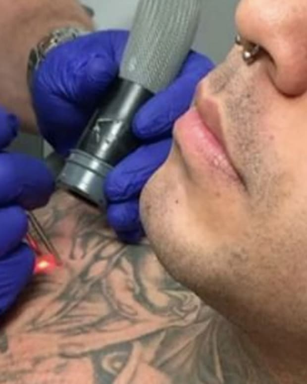 Man gets tattoo removed