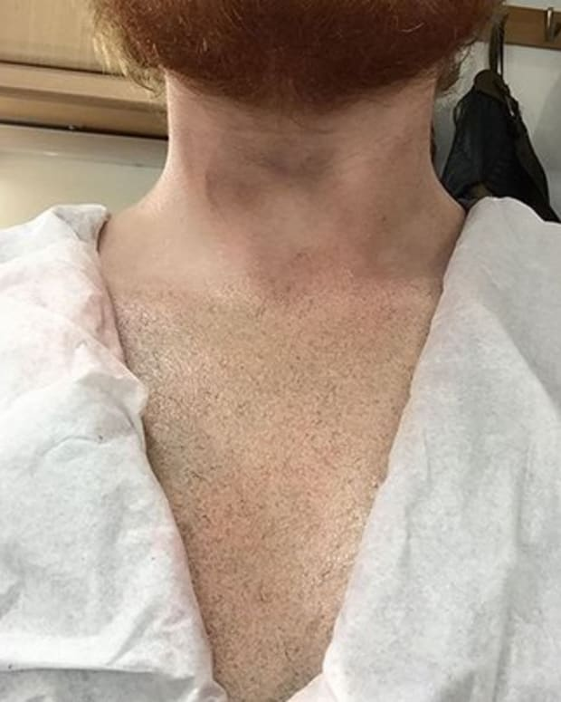 sheeran_chest_feature