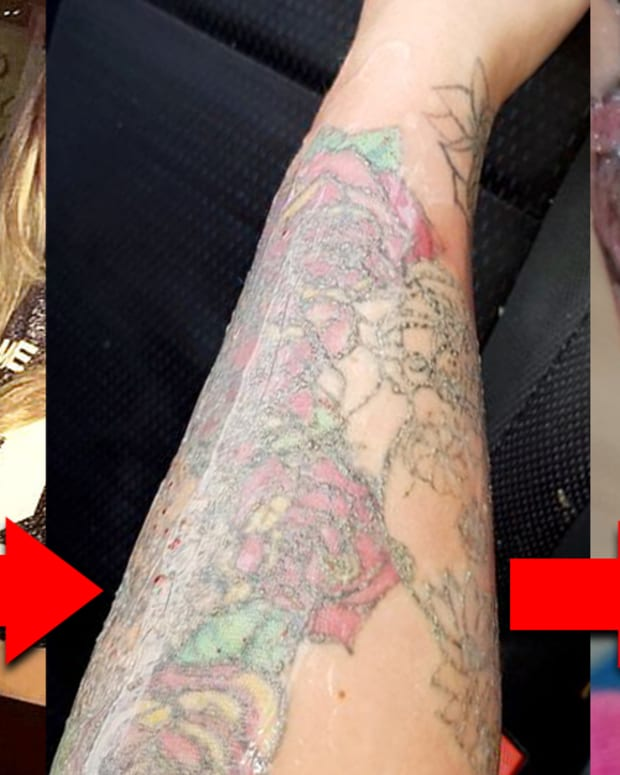 Stephanie lynn, flesh eating bugs, tattoo removal gone wrong, postpone wedding, fresh faced, laser removal, tattoo removal