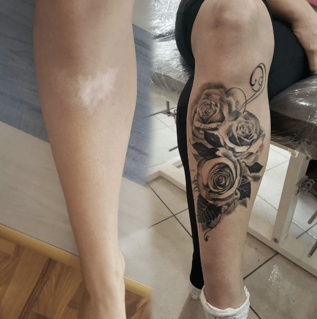 Awesome Tattoos Covering Scars Tattoo Ideas Artists And Models