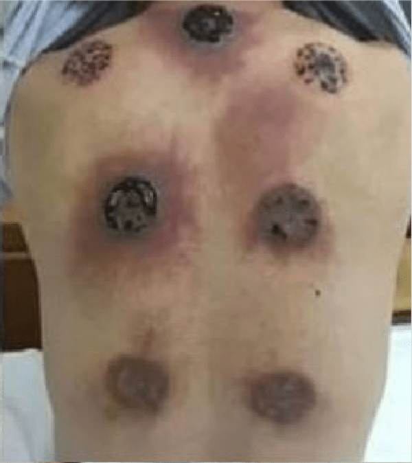 Cupping Disaster Lands Man In Hospital!