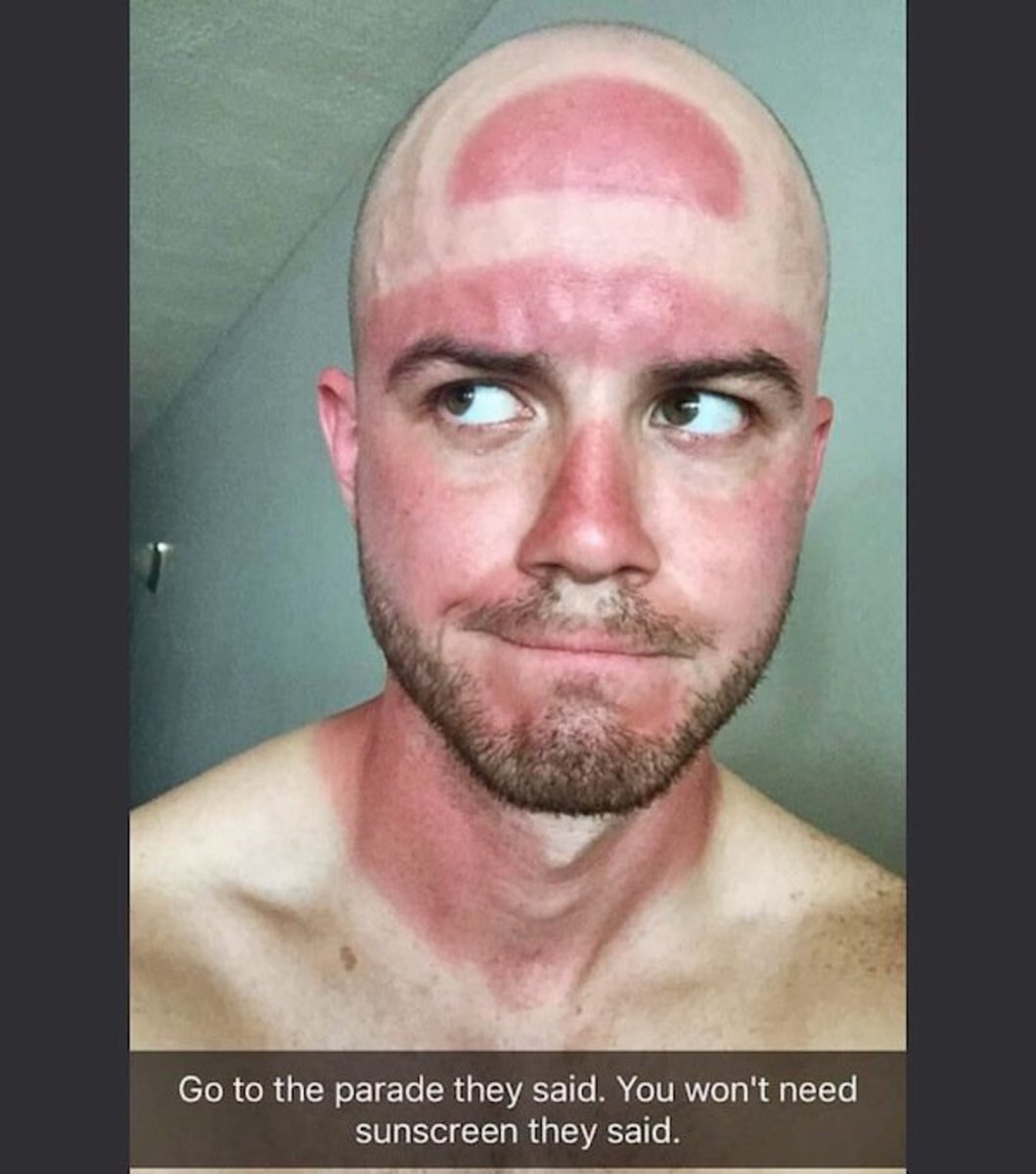 funny-photos-of-worst-sunburns-ever-fail-no-sunscreen