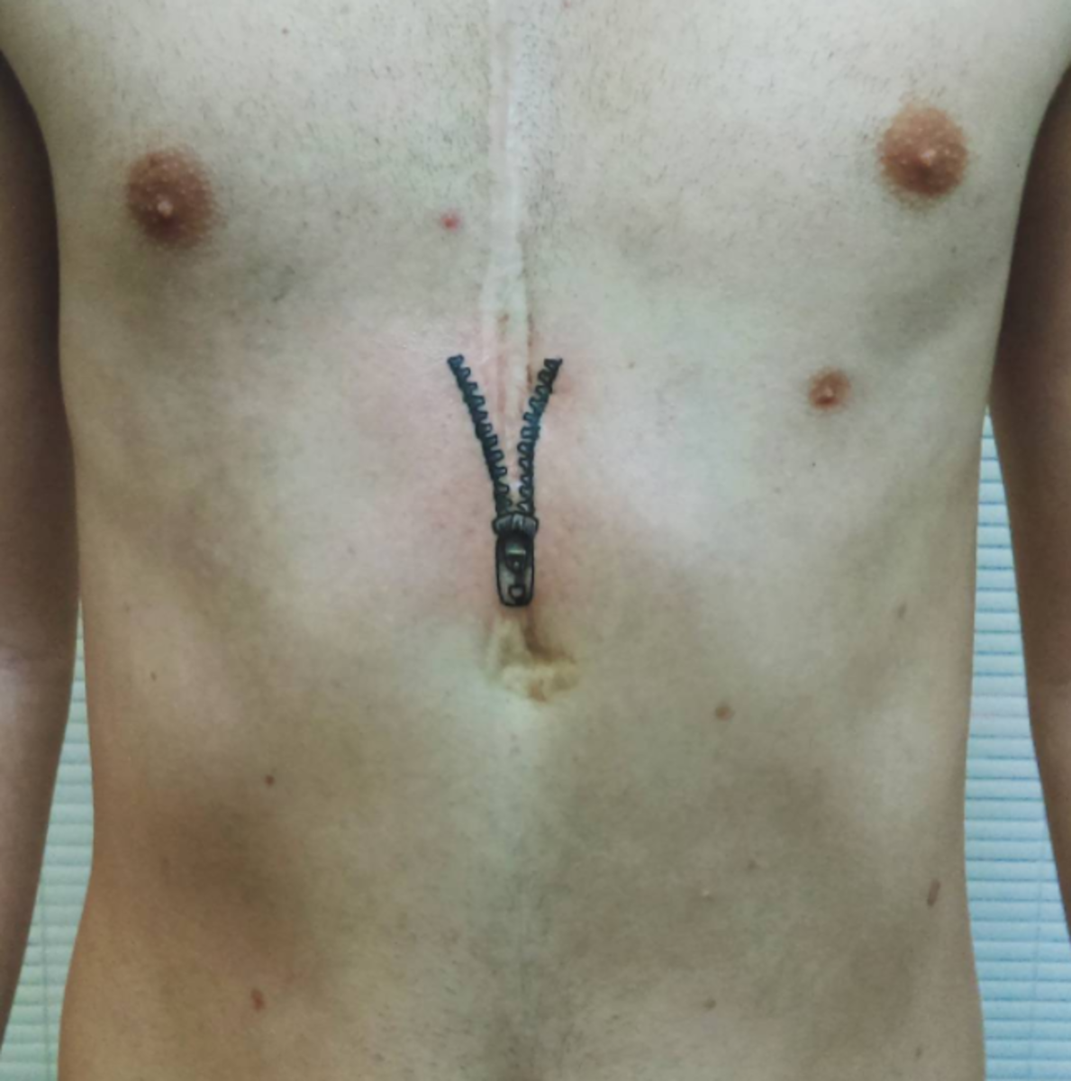 open heart surgery scar tattoo