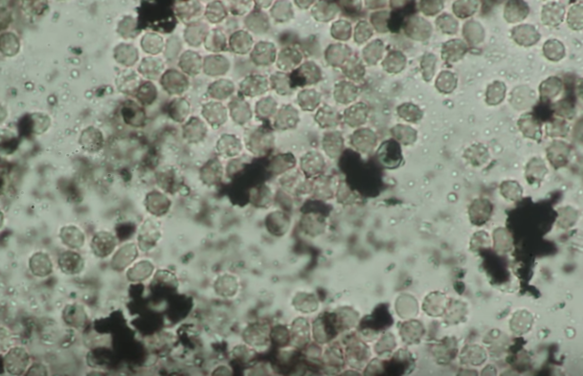tattoo ink and white blood cells under microscope