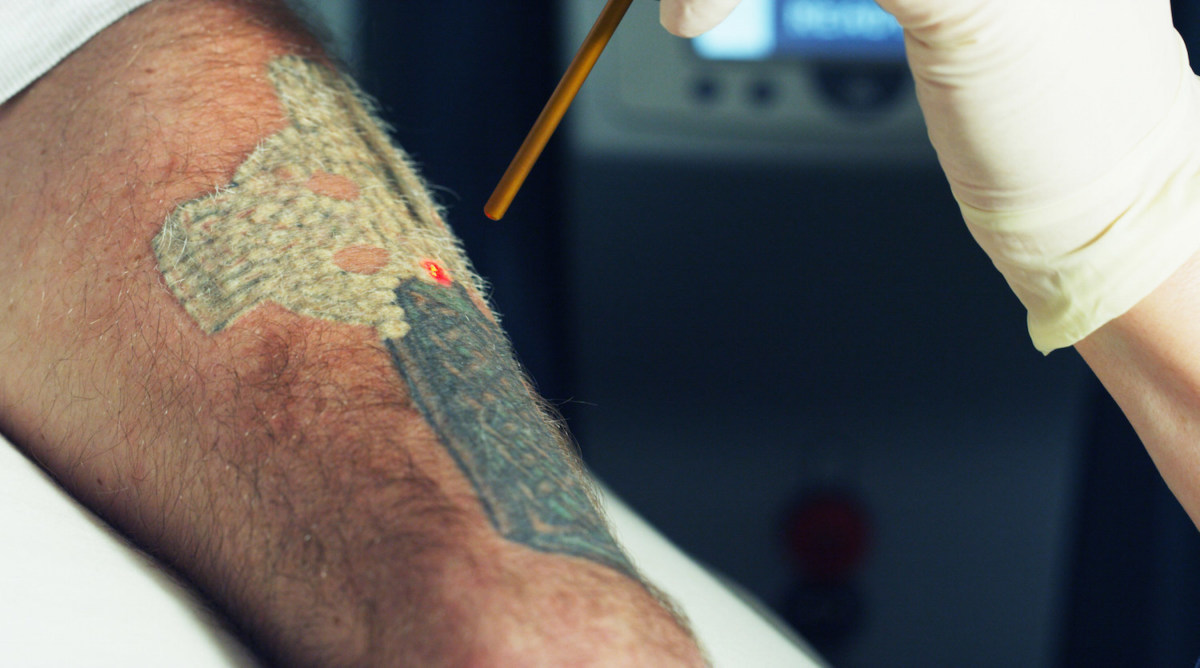 Your Ultimate Guide For Removing a Tattoo - Tattoo Ideas, Artists ...
