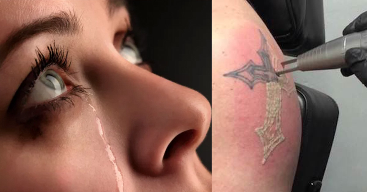 How Much Does Laser Tattoo Removal Hurt - Tattoo Ideas, Artists and ...