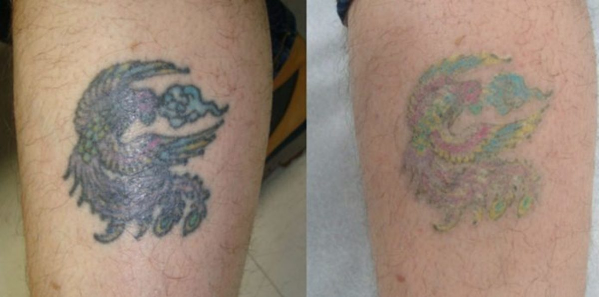 Tattoo removal, tattoo removal methods, tattoo removal creams, do tattoo removal creams work, do topical creams for scars work, tattoo cover up ideas, cover up tattoos, laser removal, laser tattoo removal, tattoo before and after laser removal, tattoo before and after tattoo removal creams, inked mag, Bruce Robinson, Northwell Health at Lenox Hill Hospital, Dr. Sejal Shah, SmarterSkin Dermatology, Debra Jaliman, Suzanne L. Kilmer, Laser & Skin Surgery Medical Group, Inc, Dillon Forte