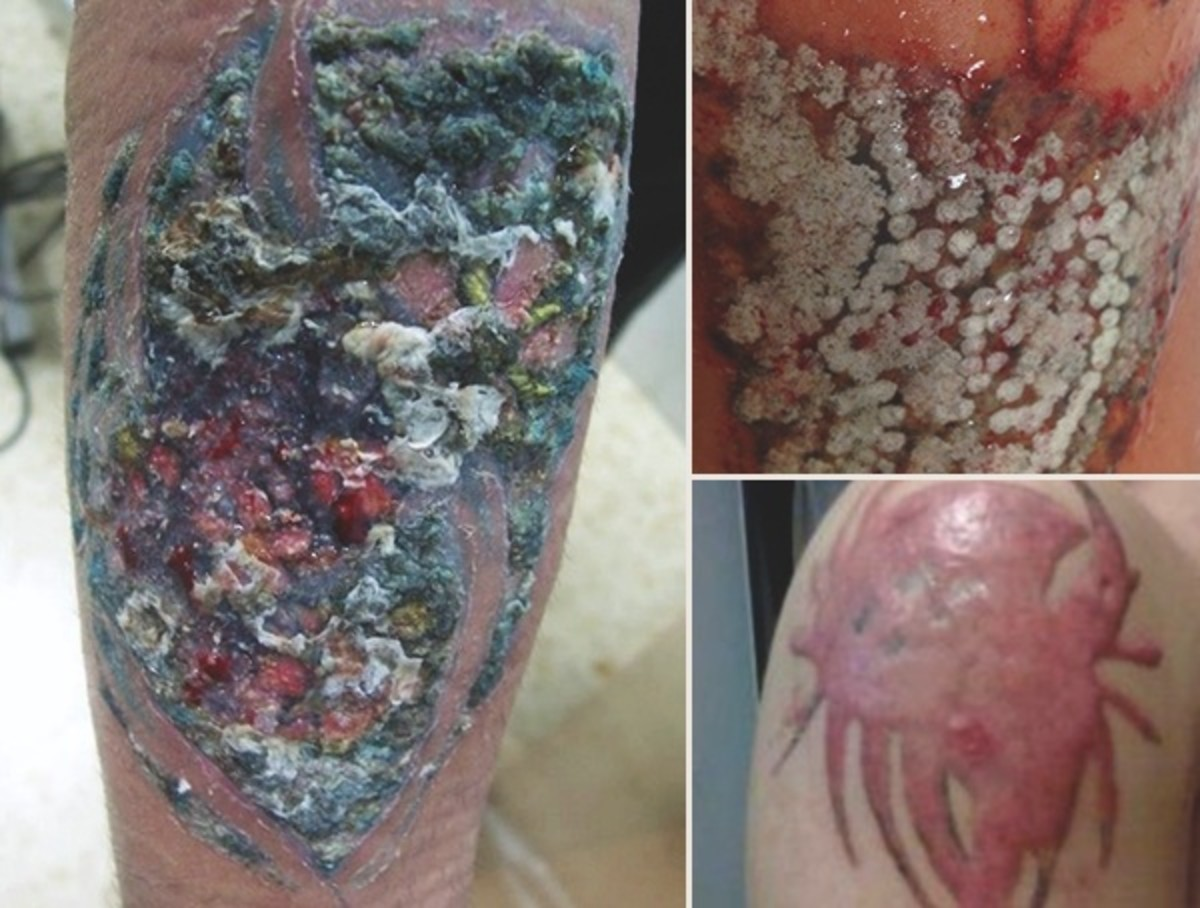 skin-symptoms-of-infected-tattoos