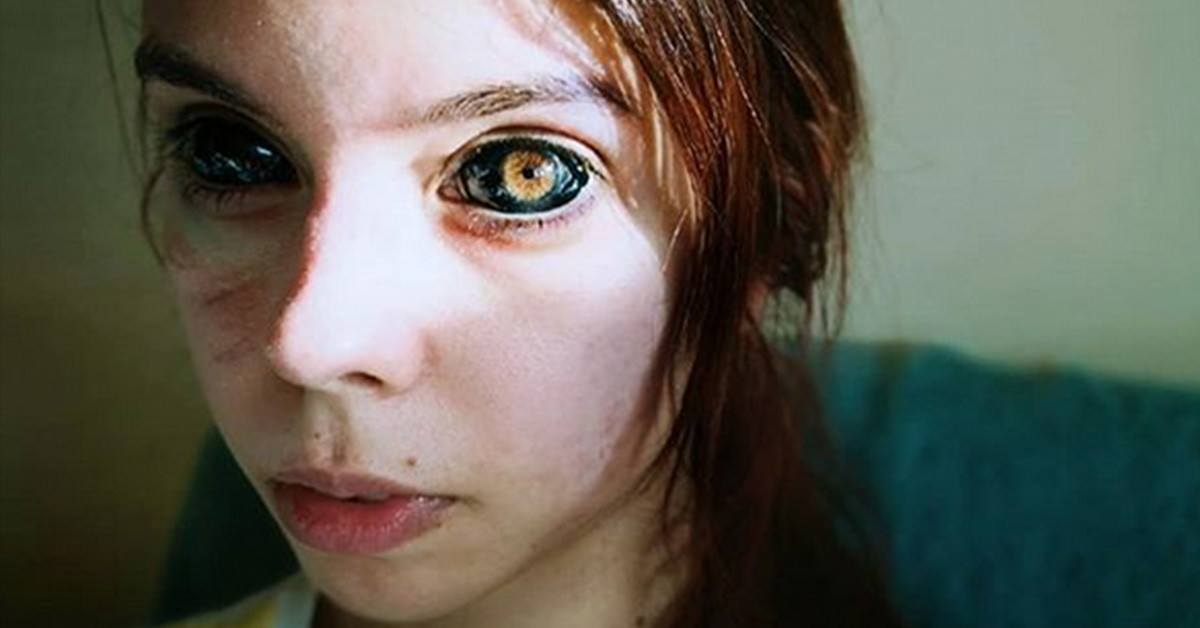 Model Goes Blind From Eyeball Tattoos Gone Wrong Tattoo